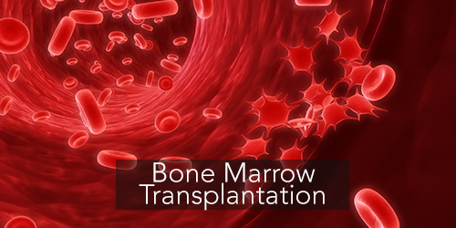 Bone Marrow Transplant in India