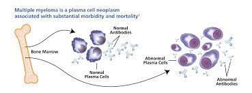 BEST MULTIPLE MYELOMA TREATMENT HOSPITALS IN INDIA