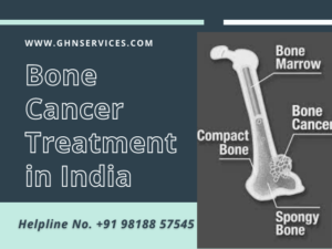 Bone Cancer Surgery cost in India