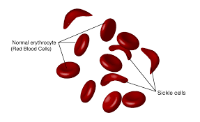 Sickle Cell Anemia Treatment Cost in India