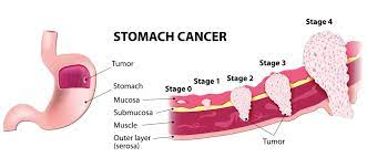 Stomach Cancer treatment cost in India
