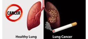 Lung Cancer treatment cost in India